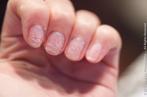 Removal Gel Nail Damage1 21