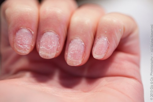 Gel on damaged nails